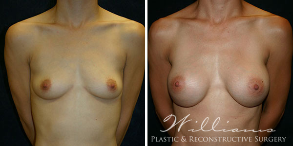 chattanooga breast implant