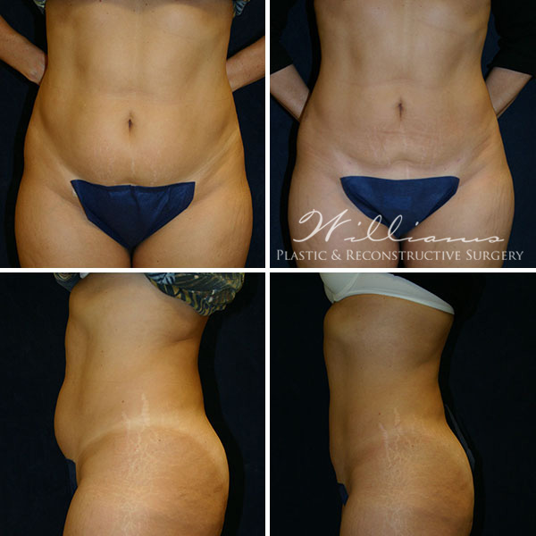 Liposuction Before and After Photos in Chattanooga / Dalton